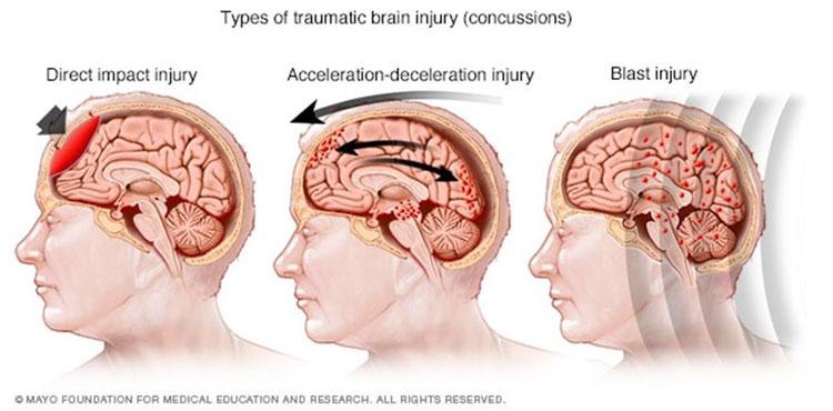 Chiropractic Lehi UT Concussion